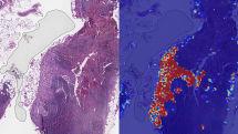 Google AI、転移性乳がんの検出精度で99%達成と主張。医師は患者ケアに集中可能に