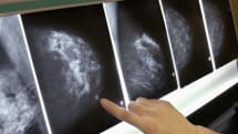MIT AI model is 'significantly' better at predicting breast cancer