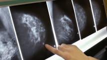 MIT、AIによる乳がん予測で「有意な」発見率向上。6万人分のデータ学習、人種格差も解消