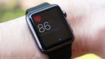 Apple Watchの心拍数モニター、英男性が心臓の早期手術をするきっかけに