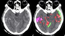 わずかな脳出血も見逃さないAI、米大学が開発。異常部位とタイプを記録分類、治療法決定に活用