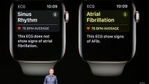 Apple Watchの心拍数モニター、13歳の少年の命を救う