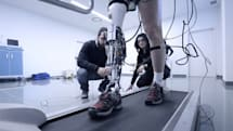 Cyberlegs project wants to equip amputees with robotic limbs