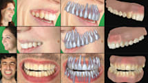 Disney can digitally recreate your teeth