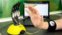 Virtu-LIMB lets prospective patients take upgraded Touch Bionics hand for a spin