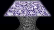 Lens-free microscope lets almost anyone spot cancer