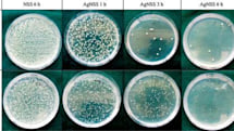 University of Birmingham researchers develop antibacterial stainless steel, mysophobes clap from within their bubbles