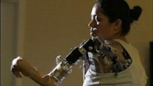 First woman gets bionic arm