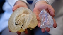 Boston Children's Hospital preps surgeons with custom 3D-printed models