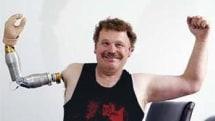 DIY prosthesis all the rage in Tasmania