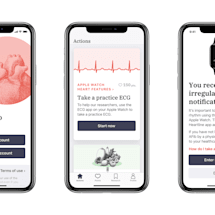Clinical trial will see if Apple devices can reduce the risk of strokes