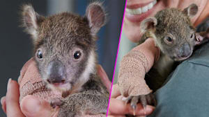 Baby koala with tiny arm cast is the cutest thing
