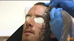 Satisfying removal of a face tattoo
