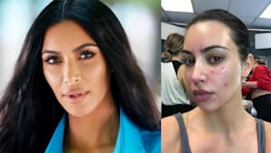 Kim Kardashian talks struggle with Psoriasis