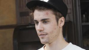 Justin Bieber: Krank oder abgedreht? Neues Paparazzo-Foto sorgt für schlimme Spekulationen