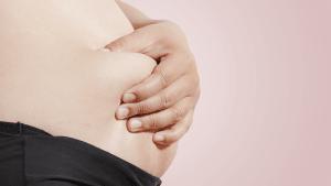 Die dickste Frau der Welt hat 400 Kilo abgenommen