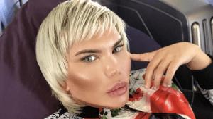 Der menschliche Ken kämpft jetzt mit ernsten Folgen seiner 11 Nasen-OPs