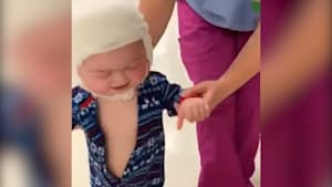 Toddler takes first steps since surgery