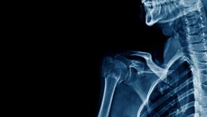 Sie hat ein intimes Geheimnis vor ihren Eltern: Das Röntgenbild deckt alles auf!