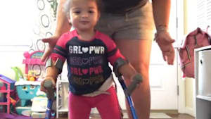 Toddler with a spinal defect takes unaided steps