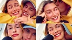 Justin Bieber: Seine Frau drückt ihm die Pickel aus