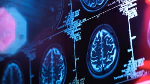 Forschung: Geräusche und Licht wirken sich positiv auf Alzheimer-Patienten aus
