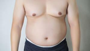 Männerbrüste: Neue Ursache entdeckt