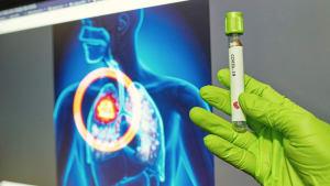 Corona-Pandemie: Bis zu 8.000 zusätzliche Tote durch Krebserkrankungen