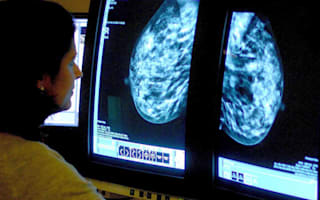 Cancer treatment plans could change in Covid-19 outbreak, says Health Secretary