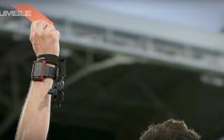 フランスのサッカー選手が、対戦相手の股間に噛みつき出場停止に・・・