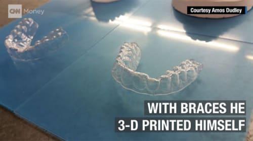 天才かよ!歯を矯正したいけど高すぎ→3Dプリンターで矯正器を作っちゃった学生がスゴい!【動画】