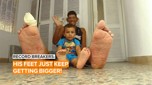 He's got the biggest feet in the world - and they're still growing!