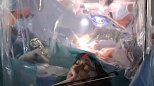 脳腫瘍の手術中に患者がバイオリンを演奏【映像】