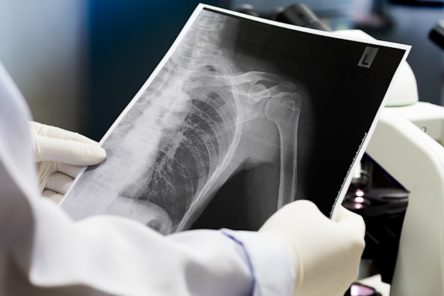 Doctor examining a lung radiography, Doctor looking chest x-ray film, Anatomy.