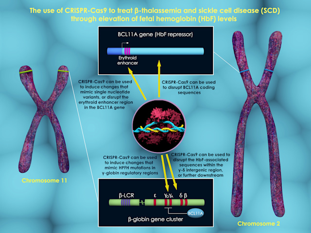3d render that shows few possible ways to treat beta-thalassemia and sickle cell disease through increase in fetal hemoglobin (HbF) levels