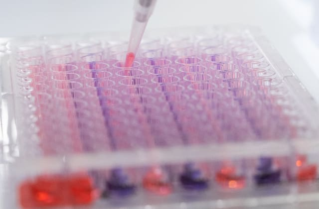 2nd coronavirus case confirmed in the U.S.
