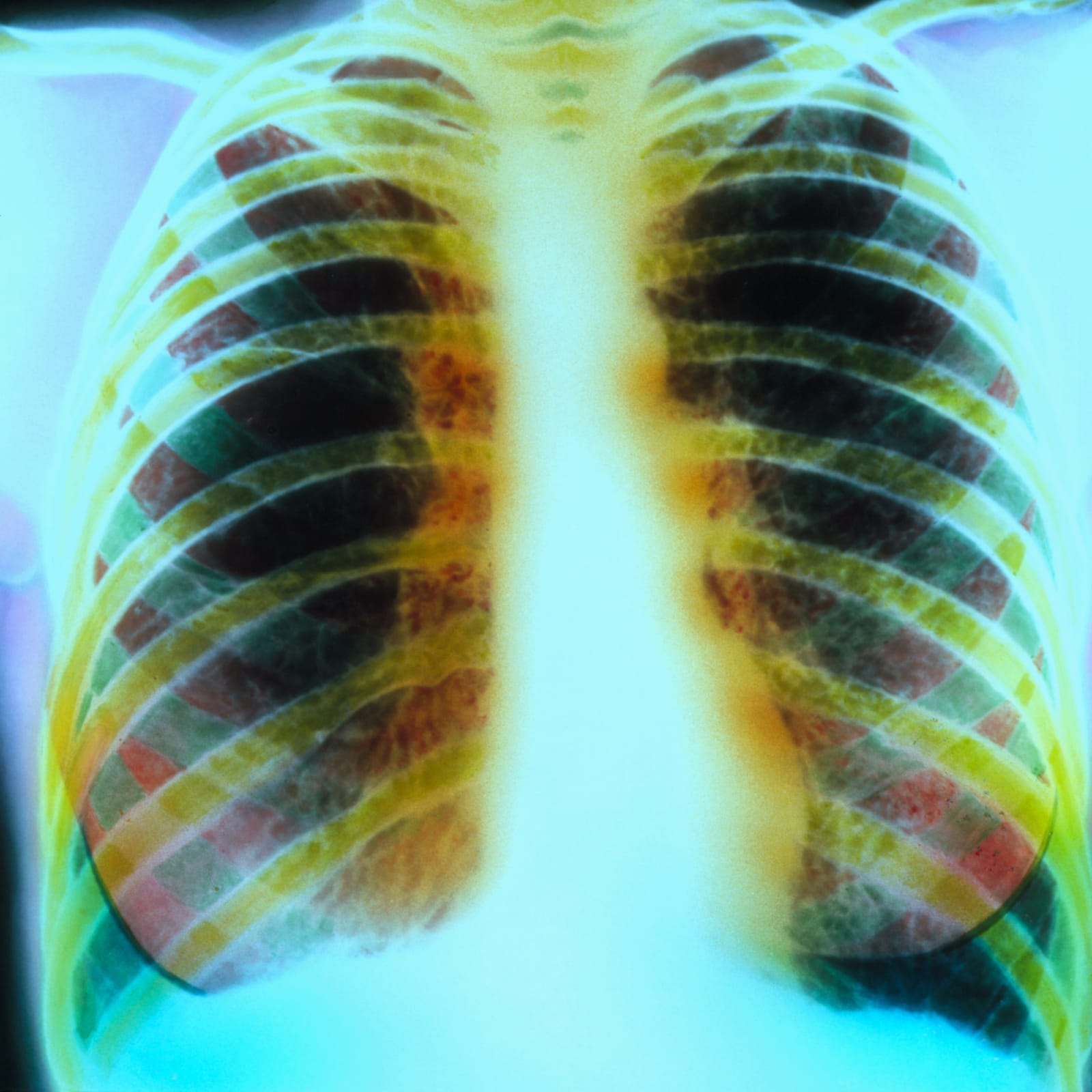 Chest X-ray of lungs with cystic fibrosis