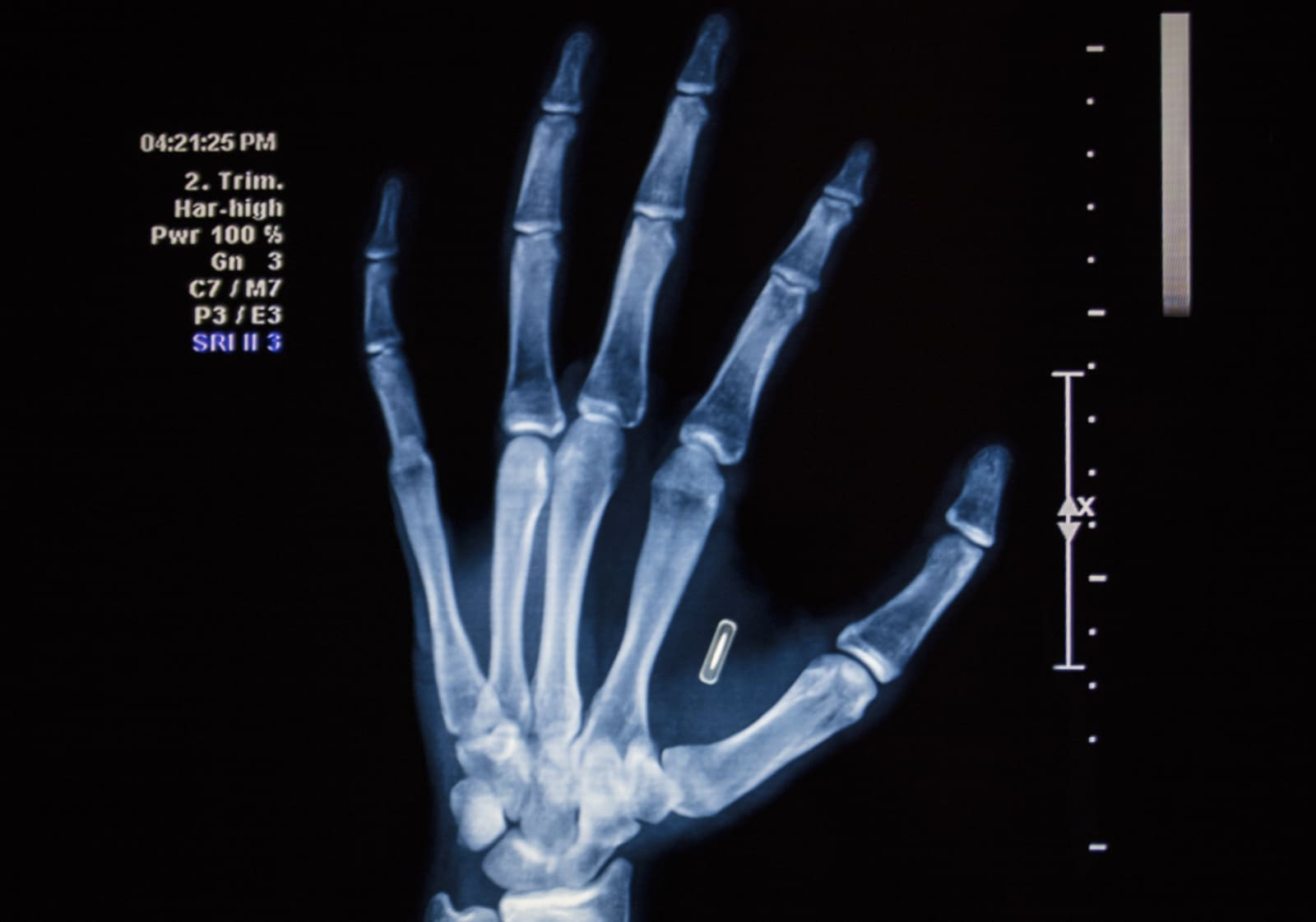 Microchip Hand Implant