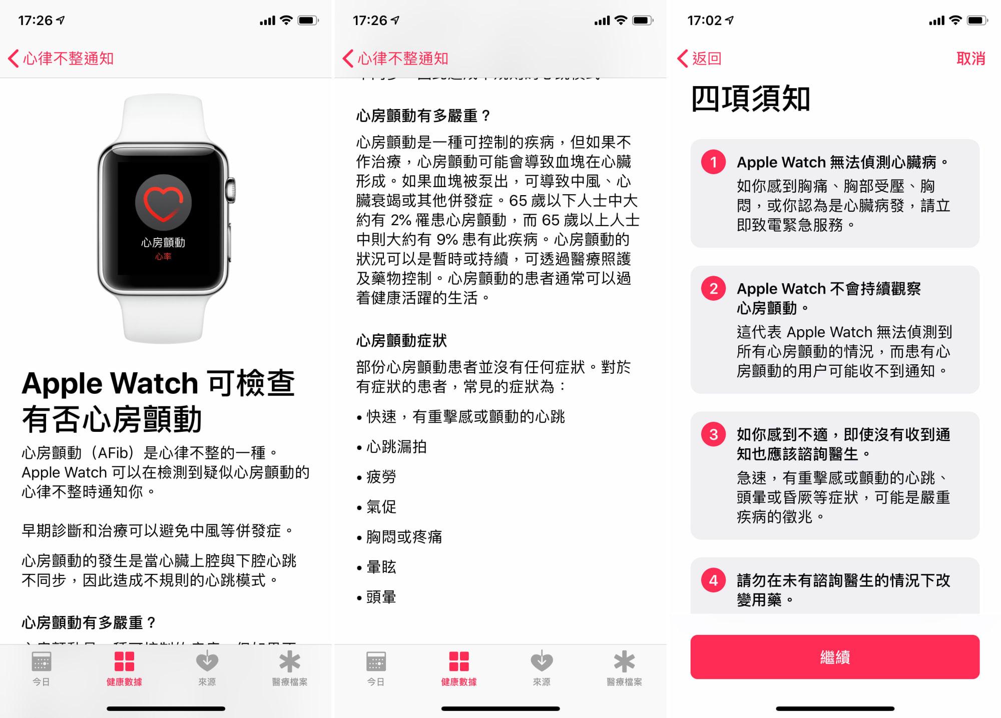 Apple Watch ECG HK