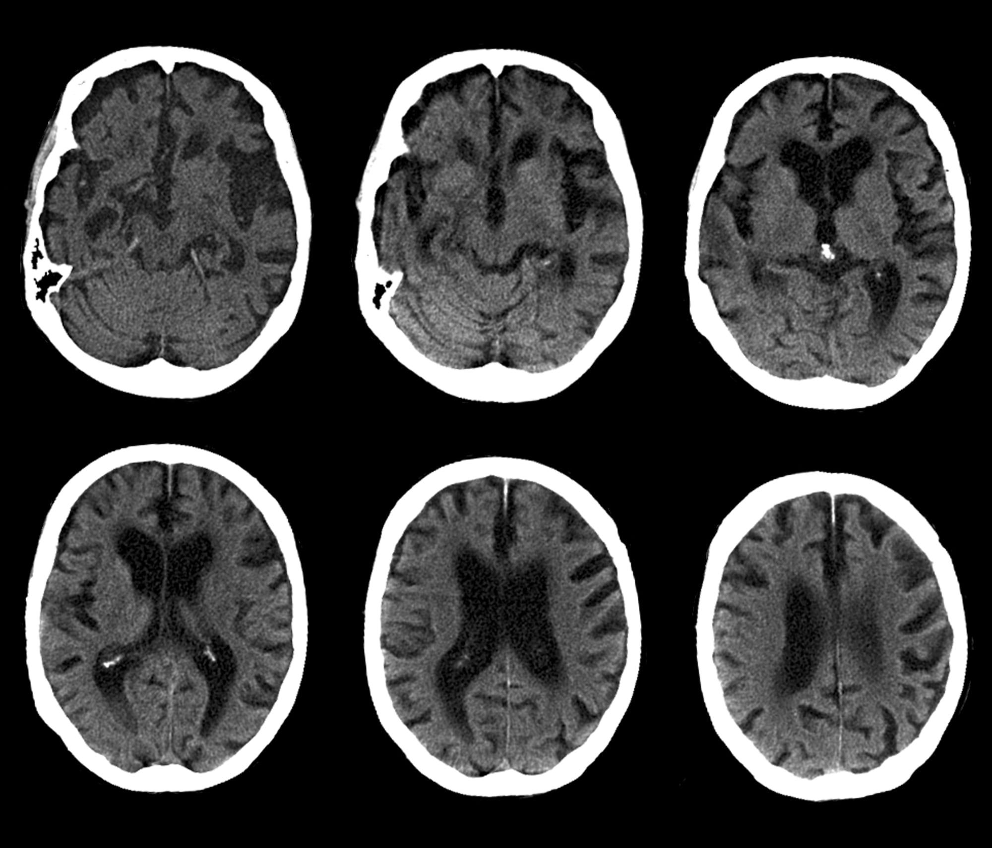 CAT scan of brain, Alzheimer's disease (B&W)